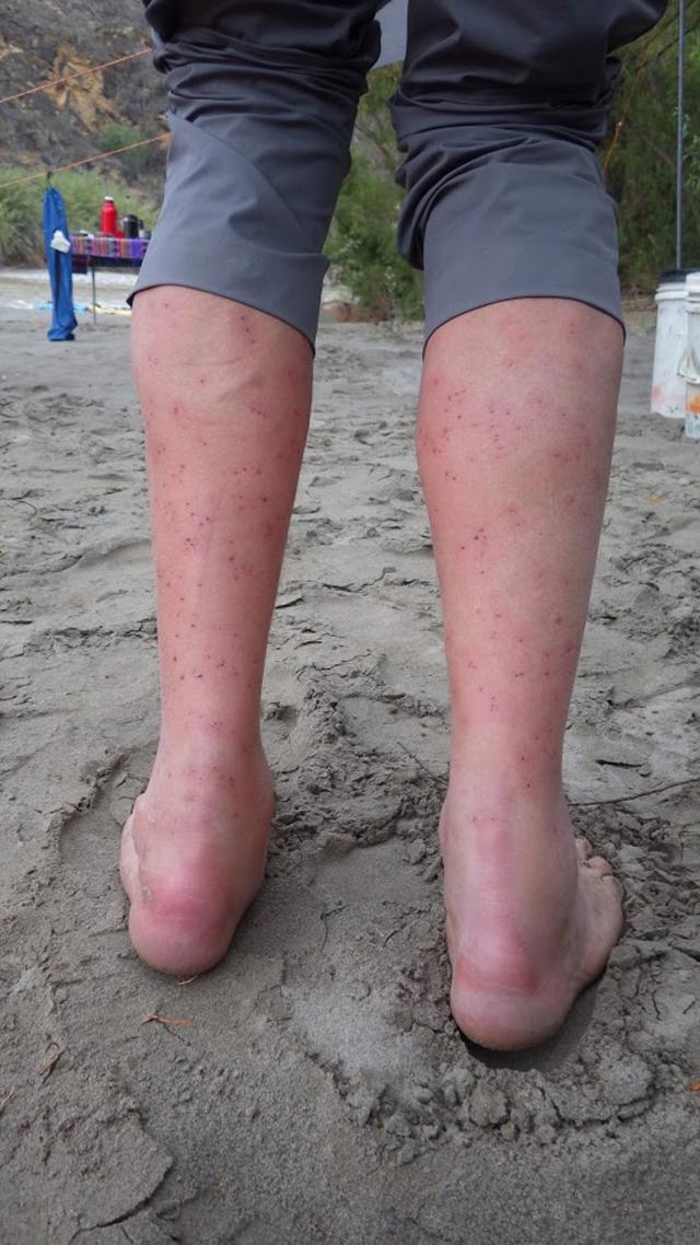 Karl's legs